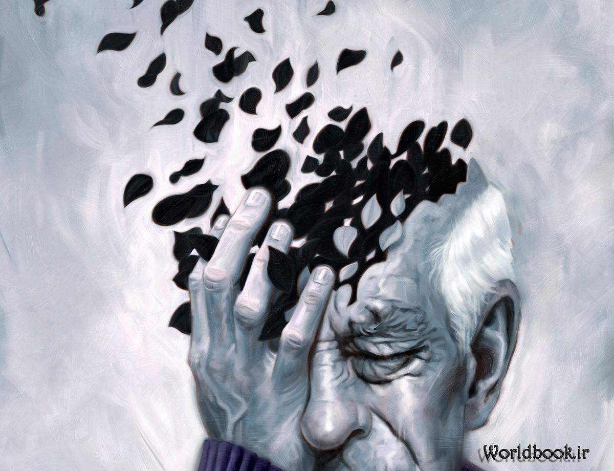 تصویر از بیماری آلزایمر
